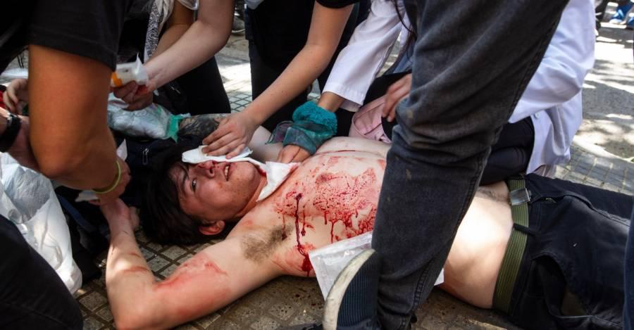 Represión en Chile: denuncian récord mundial de lesiones oculares